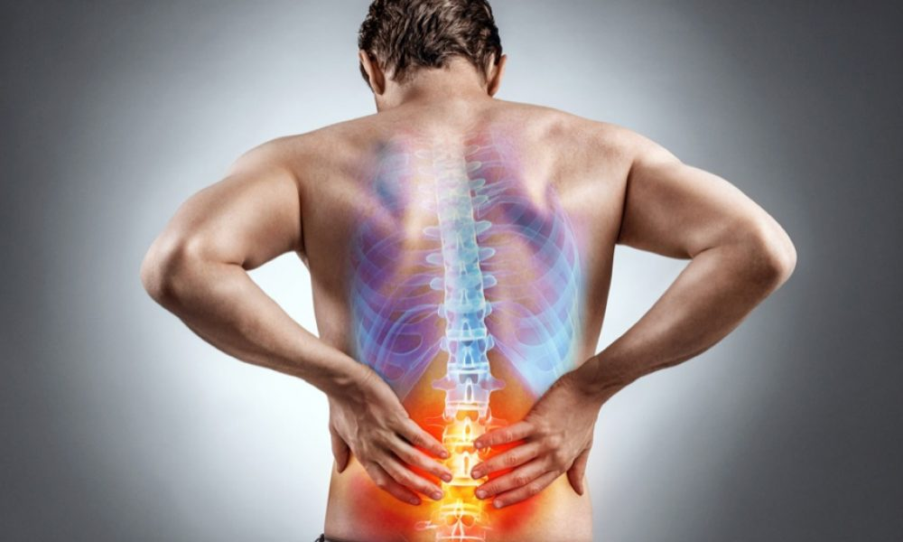 5 Remedies for Back Pain