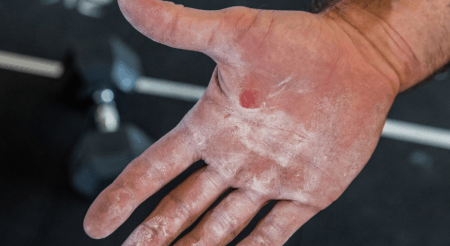crossfit hand tear skincare guide