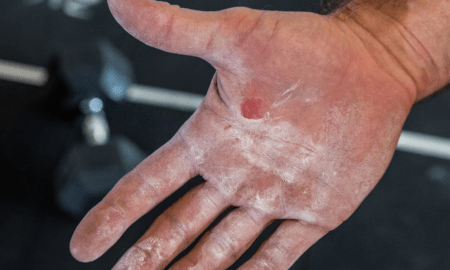 crossfit hand tear skincare guide