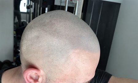 bald crossfitter micropigmentation